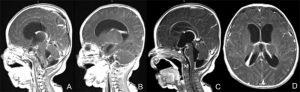 MRI of infant with meningits